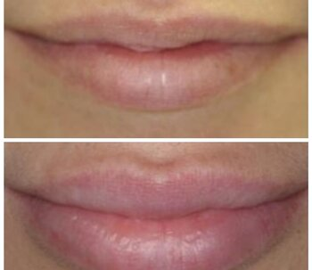 Super Filler Lips & Skin Derm Hyaluronsyra 1 ml
