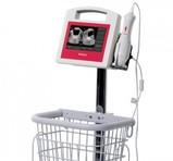 VitaScan PD Bladder Scanner v.2 with VitaScan Mobile Cart