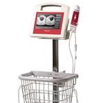VitaScan PD Bladder Scanner med VitaScan Mobil rullställning och skrivare